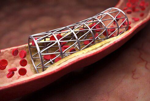 Стентирование сосудов сердца, коронарное стентирование артерий